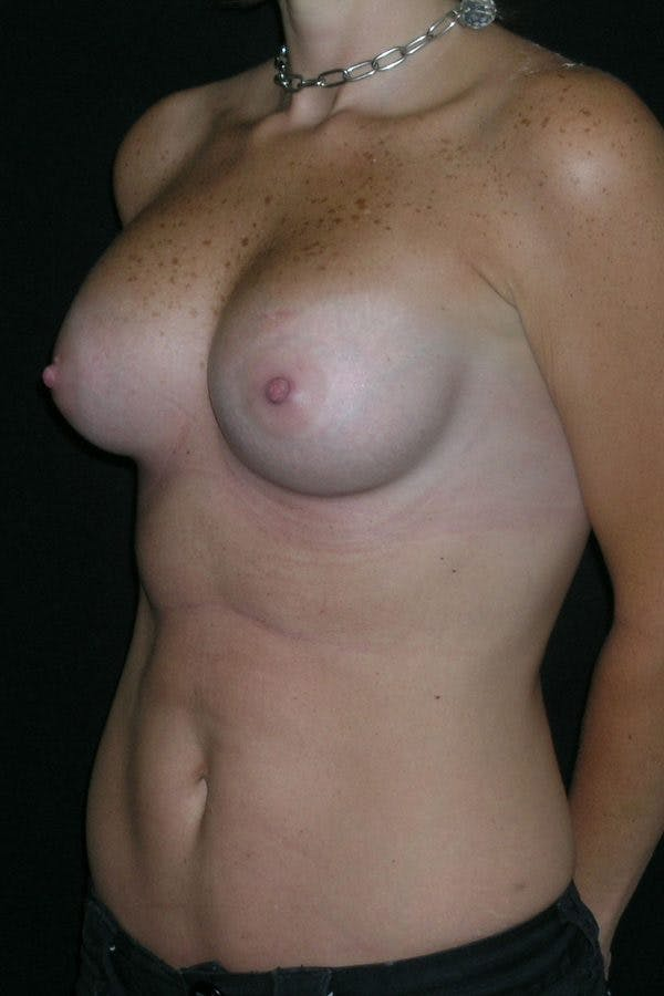 Breast Augmentation Gallery - Patient 23533181 - Image 4