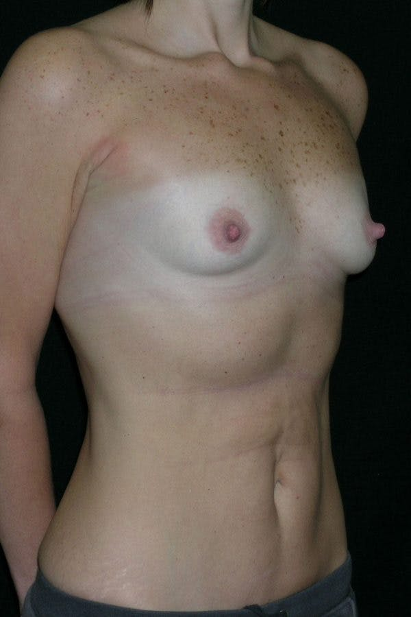 Breast Augmentation Gallery - Patient 23533181 - Image 5