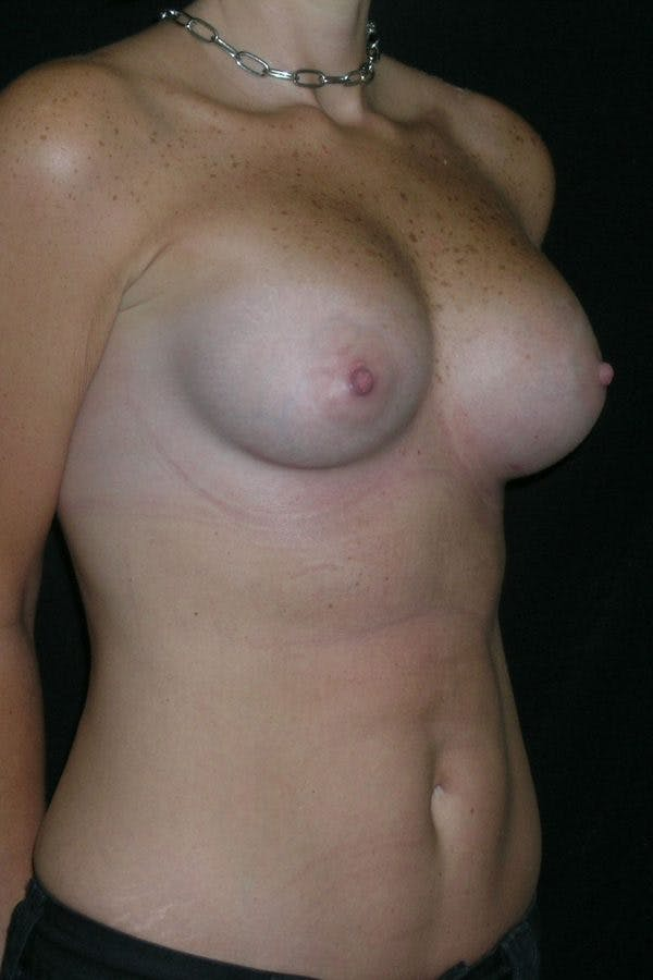 Breast Augmentation Gallery - Patient 23533181 - Image 6