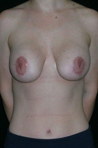 Breast Augmentation Gallery - Patient 23533190 - Image 1