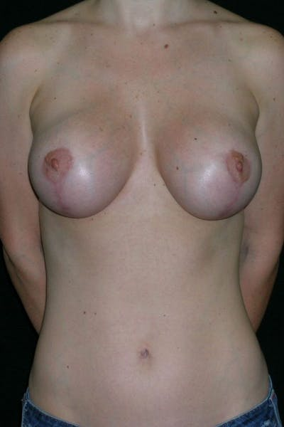 Breast Augmentation Gallery - Patient 23533190 - Image 2