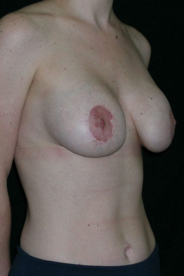 Breast Augmentation Gallery - Patient 23533190 - Image 3