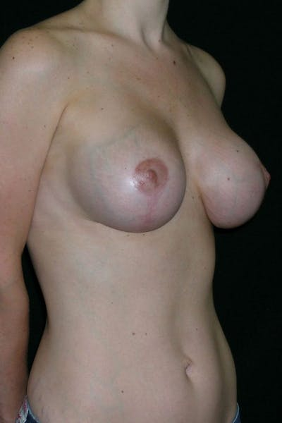 Breast Augmentation Gallery - Patient 23533190 - Image 4