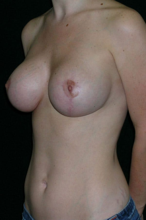 Breast Augmentation Gallery - Patient 23533190 - Image 6