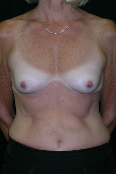 Breast Augmentation Gallery - Patient 23533199 - Image 1