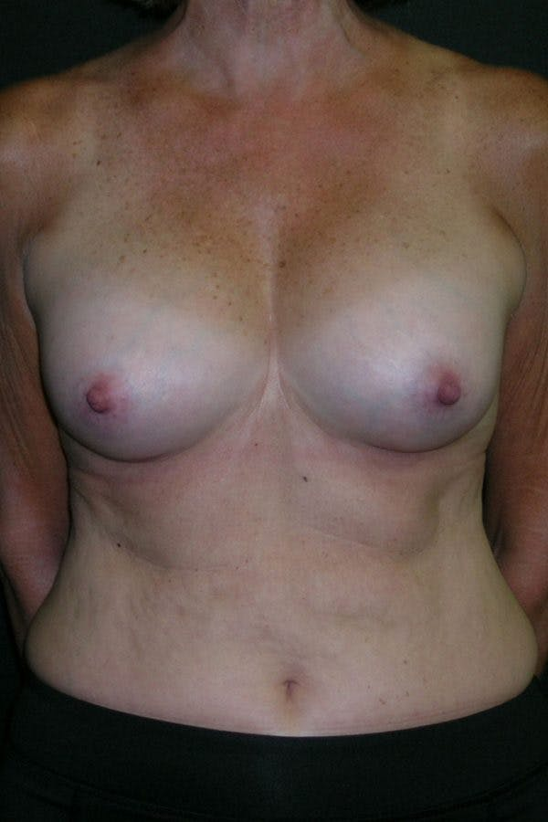 Breast Augmentation Gallery - Patient 23533199 - Image 2