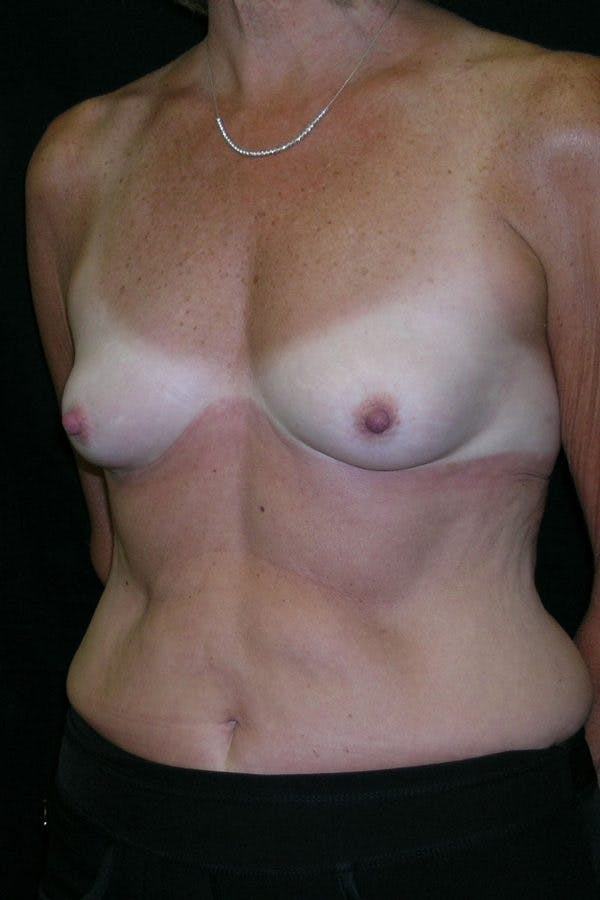 Breast Augmentation Gallery - Patient 23533199 - Image 3