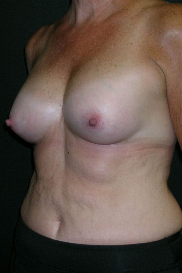 Breast Augmentation Gallery - Patient 23533199 - Image 4