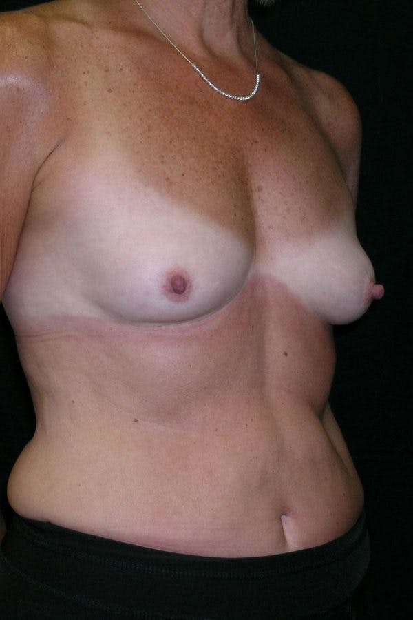 Breast Augmentation Gallery - Patient 23533199 - Image 5