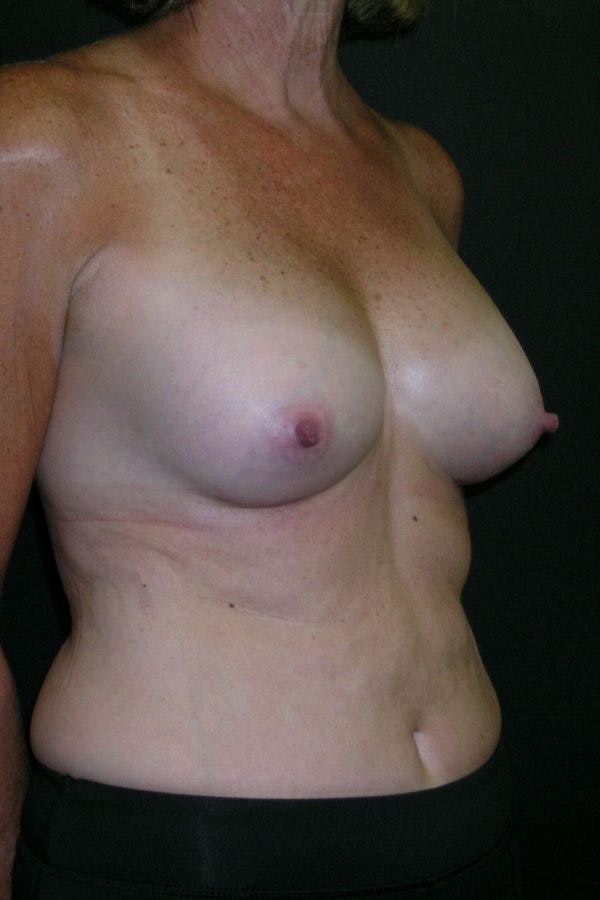 Breast Augmentation Gallery - Patient 23533199 - Image 6