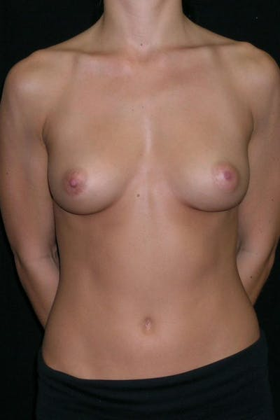 Breast Augmentation Gallery - Patient 23533209 - Image 1
