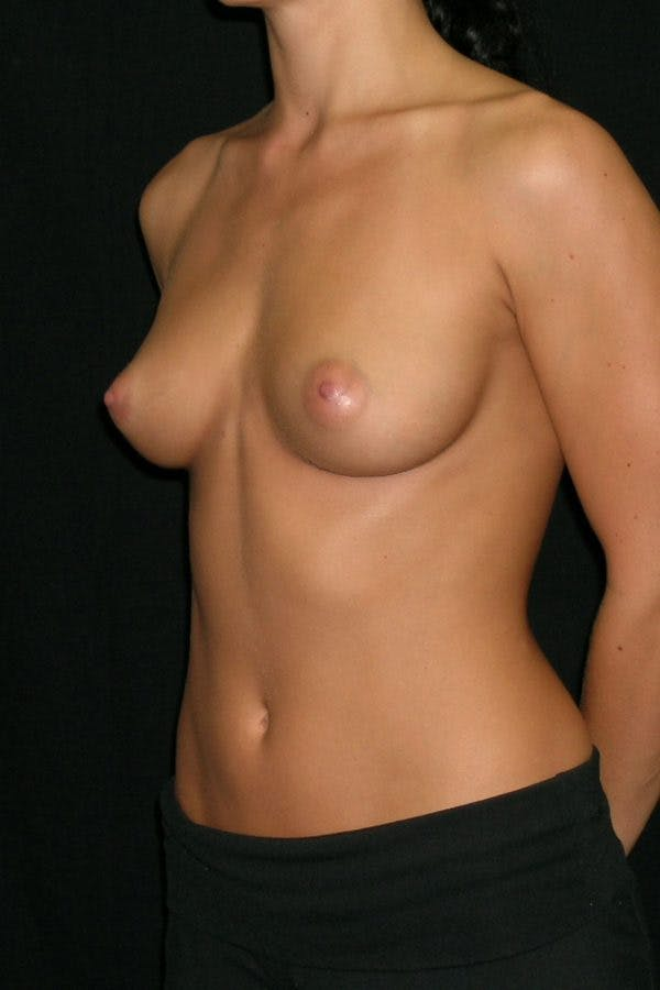 Breast Augmentation Gallery - Patient 23533209 - Image 3