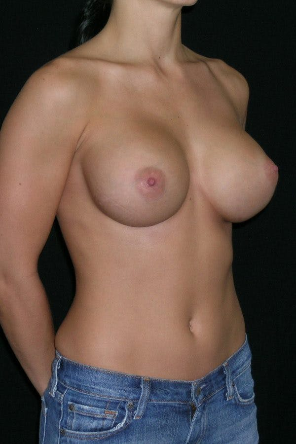 Breast Augmentation Gallery - Patient 23533209 - Image 6