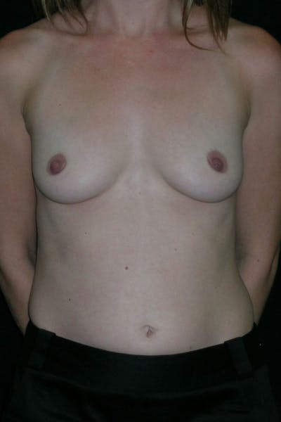 Breast Augmentation Gallery - Patient 23533220 - Image 1
