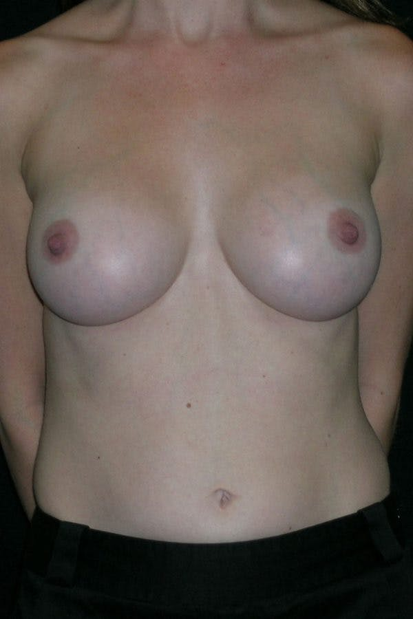 Breast Augmentation Gallery - Patient 23533220 - Image 2