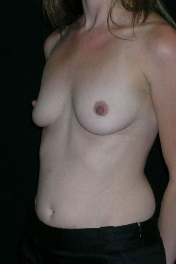 Breast Augmentation Gallery - Patient 23533220 - Image 3