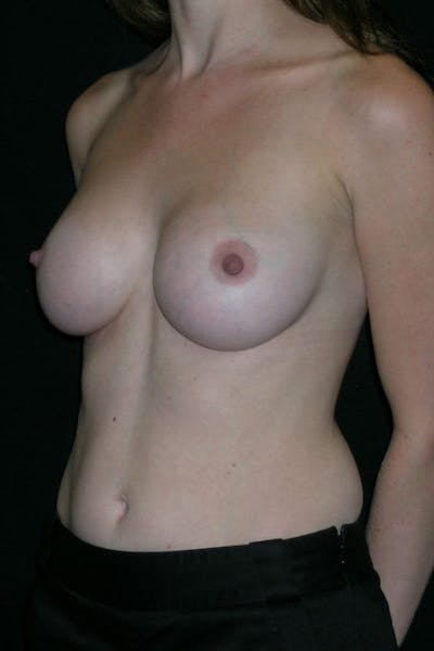 Breast Augmentation Gallery - Patient 23533220 - Image 4