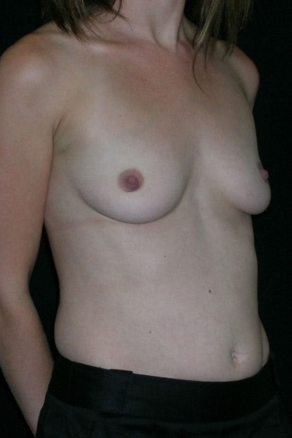 Breast Augmentation Gallery - Patient 23533220 - Image 5