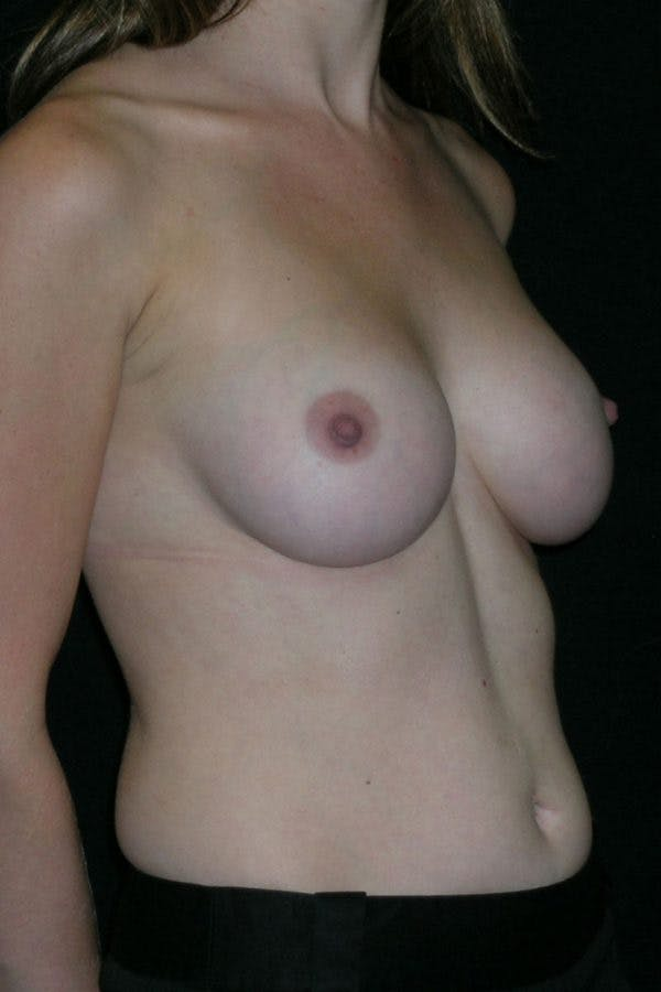 Breast Augmentation Gallery - Patient 23533220 - Image 6
