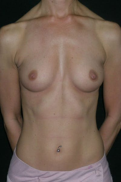 Breast Augmentation Gallery - Patient 23533233 - Image 1