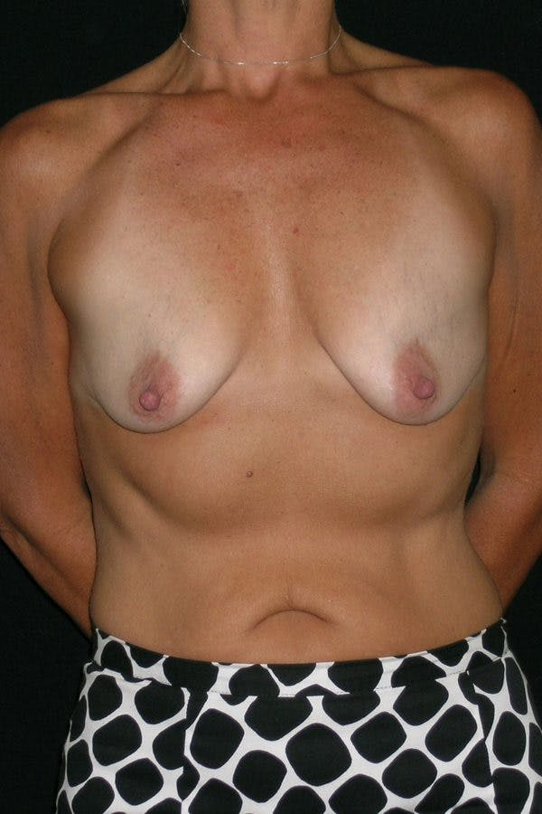 Breast Augmentation Gallery - Patient 23533236 - Image 1
