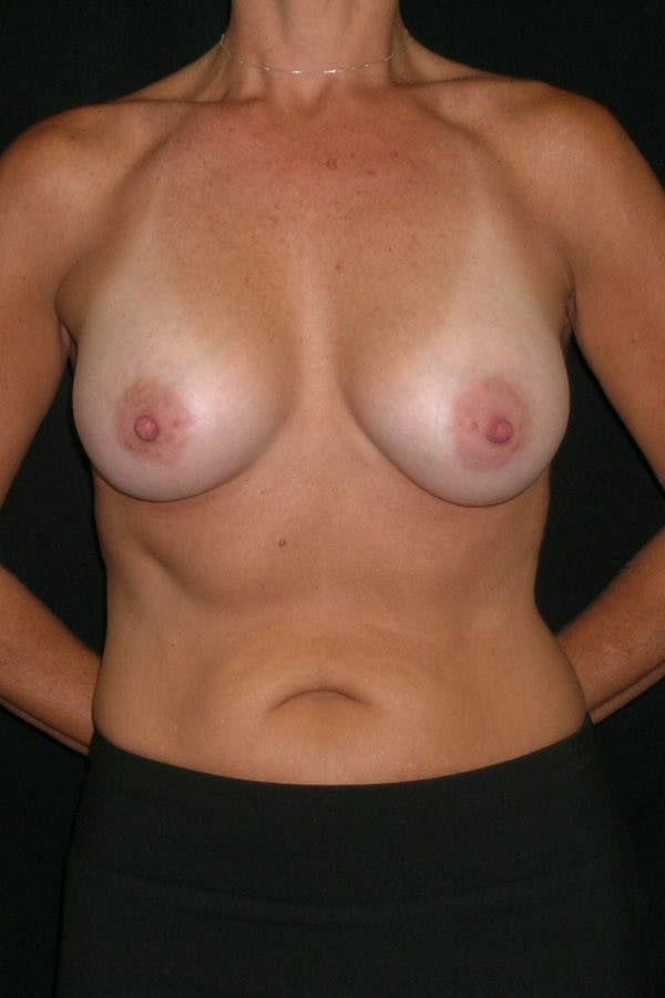 Breast Augmentation Gallery - Patient 23533236 - Image 2