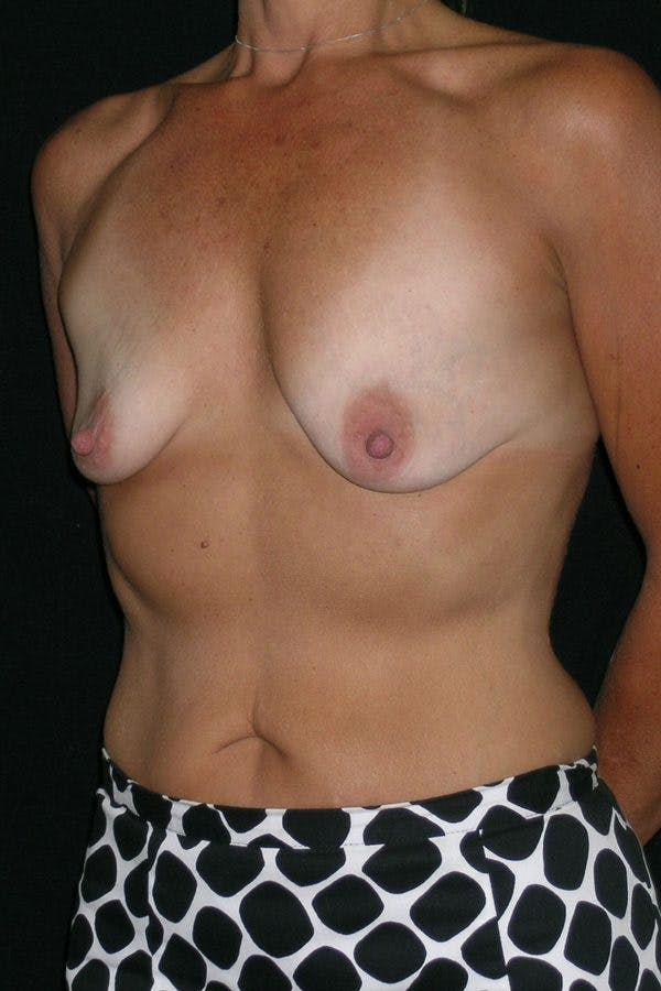Breast Augmentation Gallery - Patient 23533236 - Image 3