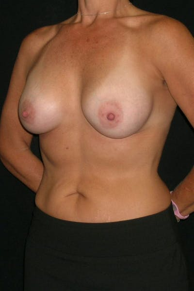 Breast Augmentation Gallery - Patient 23533236 - Image 4