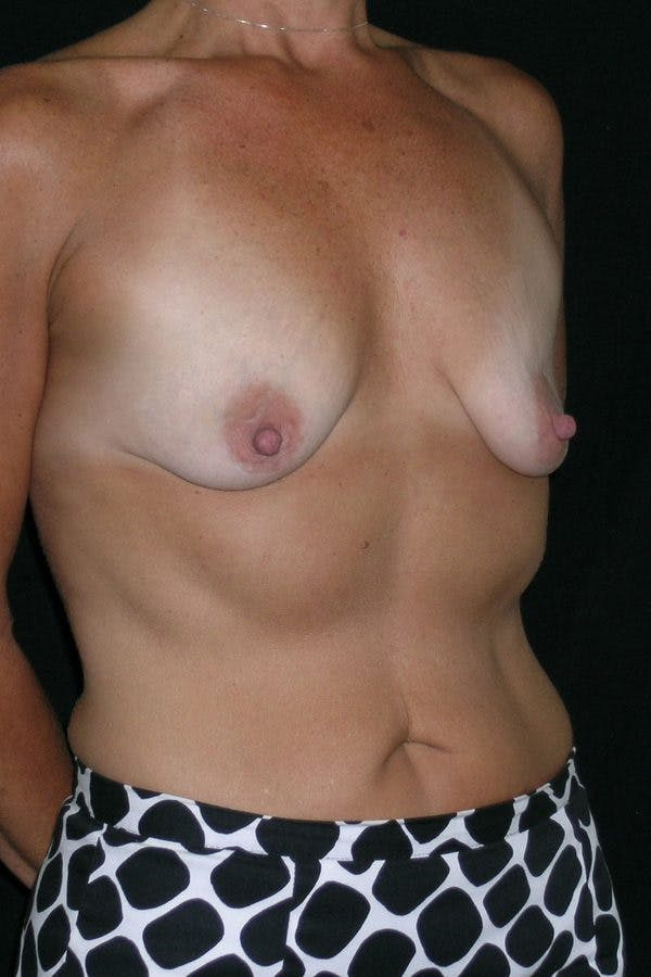 Breast Augmentation Gallery - Patient 23533236 - Image 5