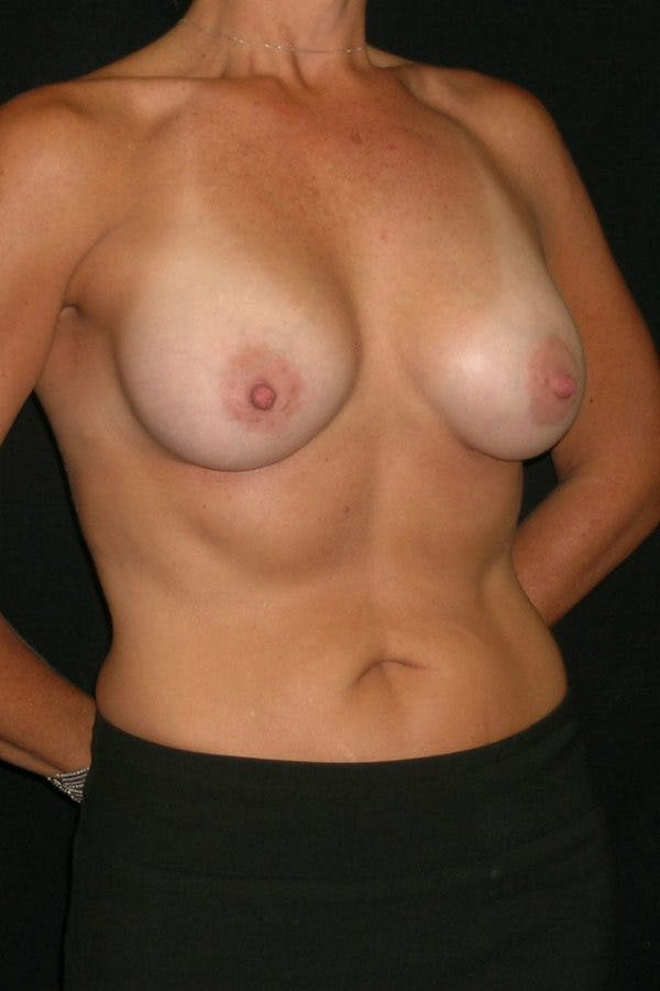 Breast Augmentation Gallery - Patient 23533236 - Image 6