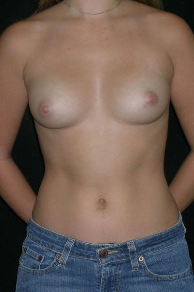 Breast Augmentation Gallery - Patient 23533238 - Image 1