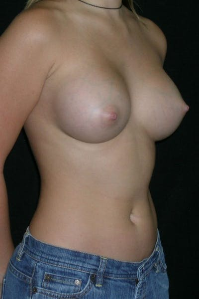 Breast Augmentation Gallery - Patient 23533238 - Image 6
