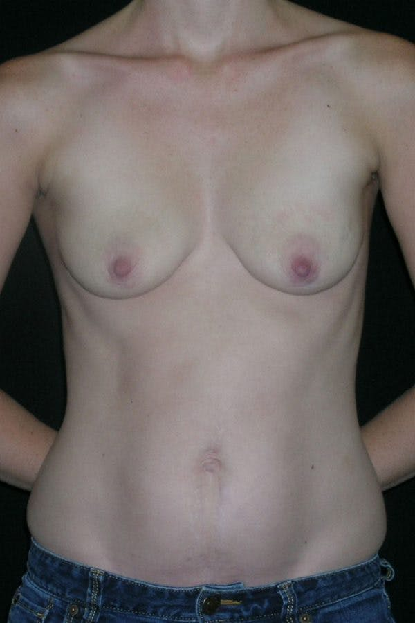 Breast Augmentation Gallery - Patient 23533240 - Image 1