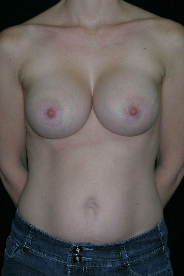 Breast Augmentation Gallery - Patient 23533240 - Image 2