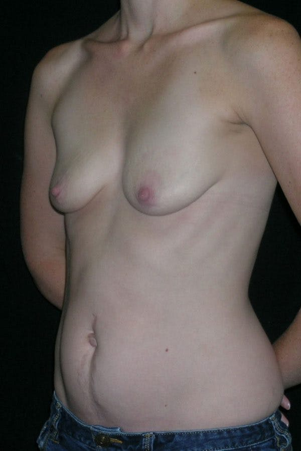 Breast Augmentation Gallery - Patient 23533240 - Image 3