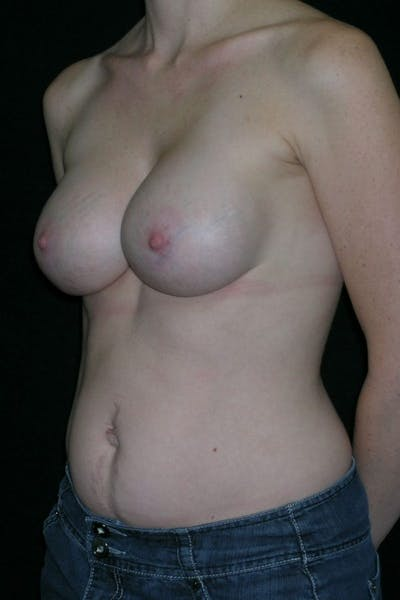 Breast Augmentation Gallery - Patient 23533240 - Image 4