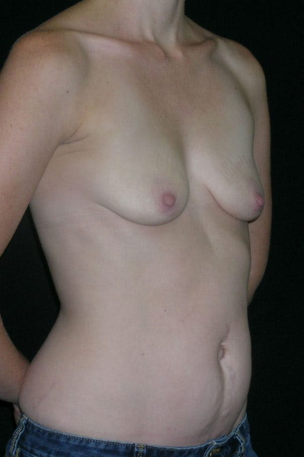 Breast Augmentation Gallery - Patient 23533240 - Image 5