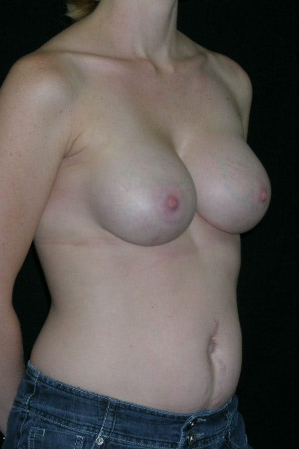Breast Augmentation Gallery - Patient 23533240 - Image 6