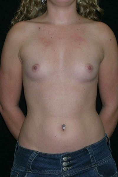 Breast Augmentation Gallery - Patient 23533243 - Image 1