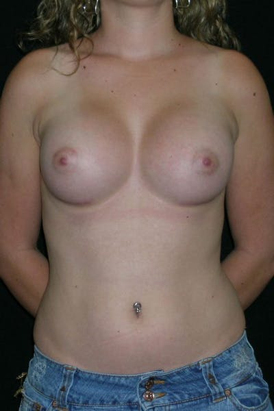 Breast Augmentation Gallery - Patient 23533243 - Image 2