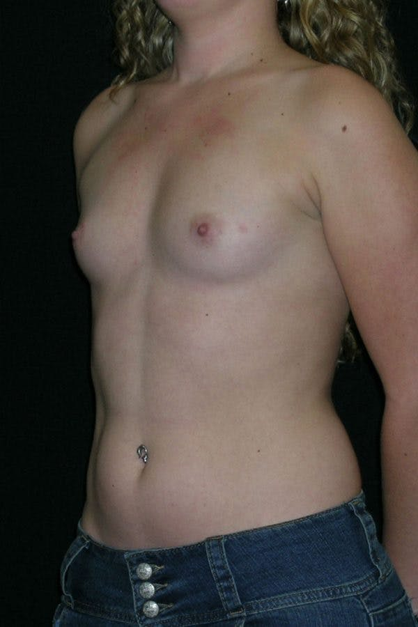 Breast Augmentation Gallery - Patient 23533243 - Image 3