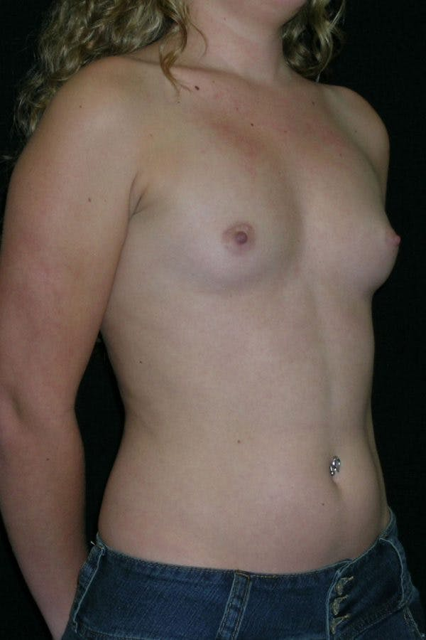 Breast Augmentation Gallery - Patient 23533243 - Image 5