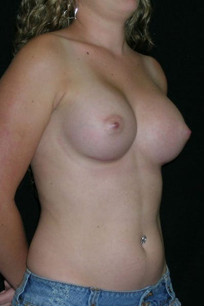 Breast Augmentation Gallery - Patient 23533243 - Image 6