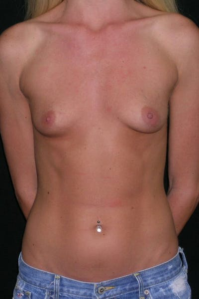 Breast Augmentation Gallery - Patient 23533251 - Image 1