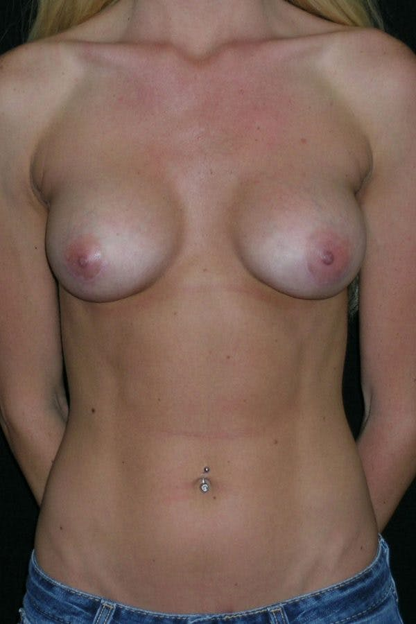 Breast Augmentation Gallery - Patient 23533251 - Image 2