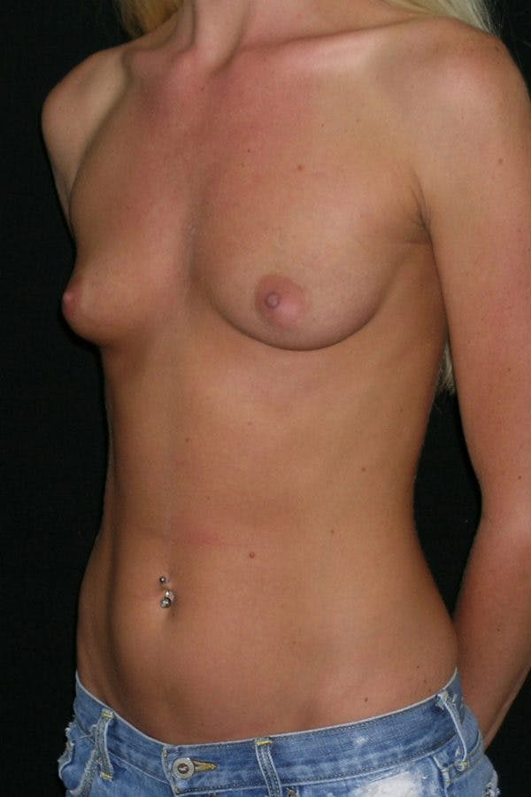Breast Augmentation Gallery - Patient 23533251 - Image 3