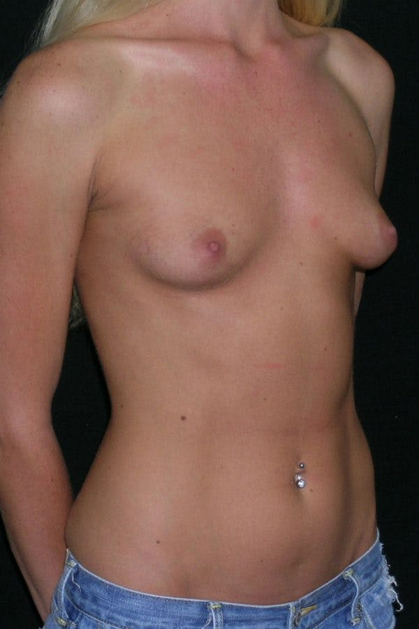 Breast Augmentation Gallery - Patient 23533251 - Image 5