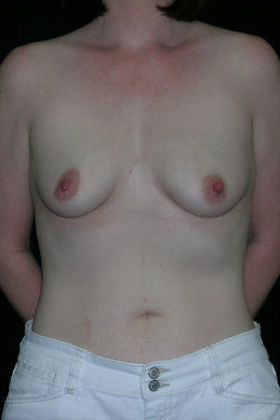Breast Augmentation Gallery - Patient 23533252 - Image 1