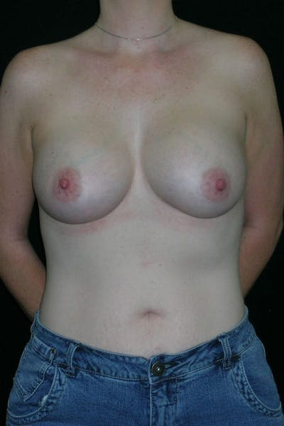 Breast Augmentation Gallery - Patient 23533252 - Image 2