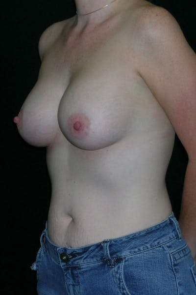 Breast Augmentation Gallery - Patient 23533252 - Image 4